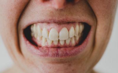 Bruxismus und Zähneknirschen stoppen